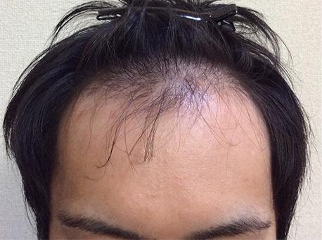 20代発毛症例(1)